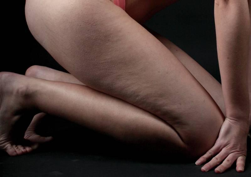 trattamento cellulite bendaggi e crema anticellulite