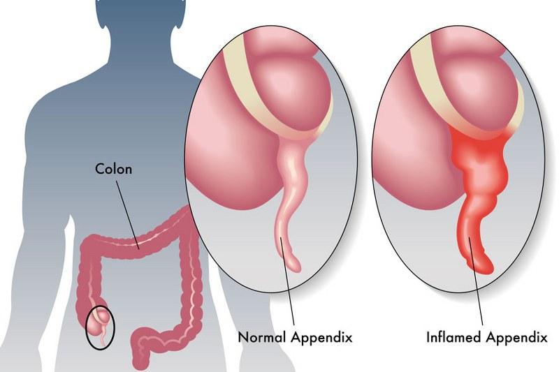 appendicite cronica